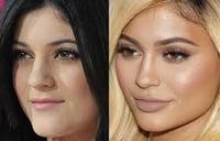 Jenner Plastic Surgery