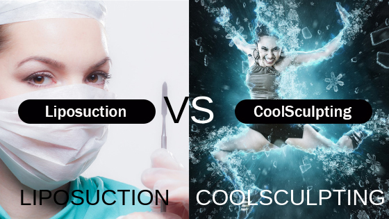 Liposuction Orlando versus CoolSculpting