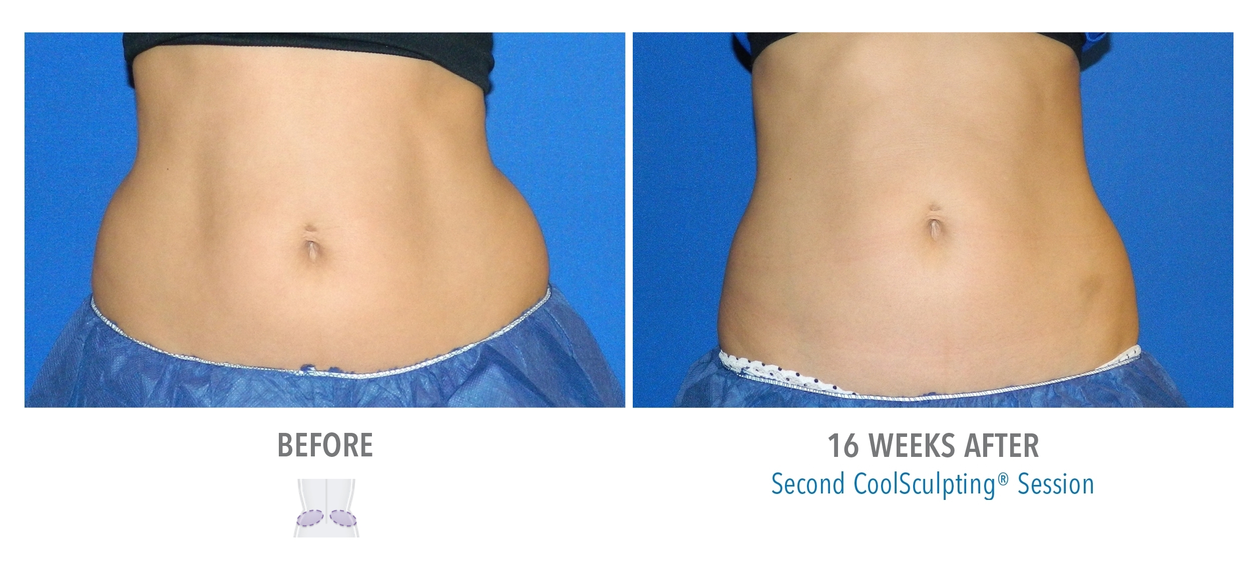 Love Handles - Female 6 CoolSculpting Orlando