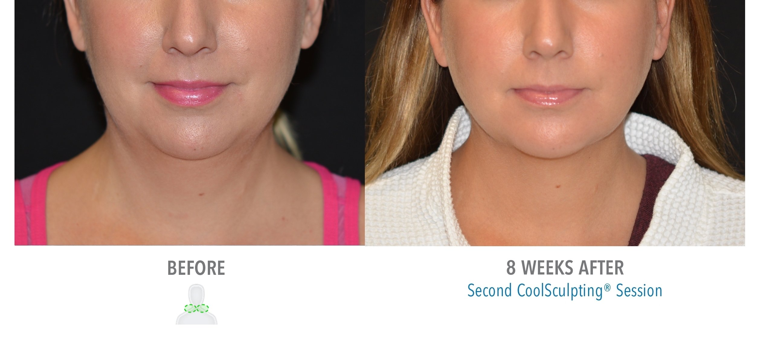 Chin Liposuction Orlando