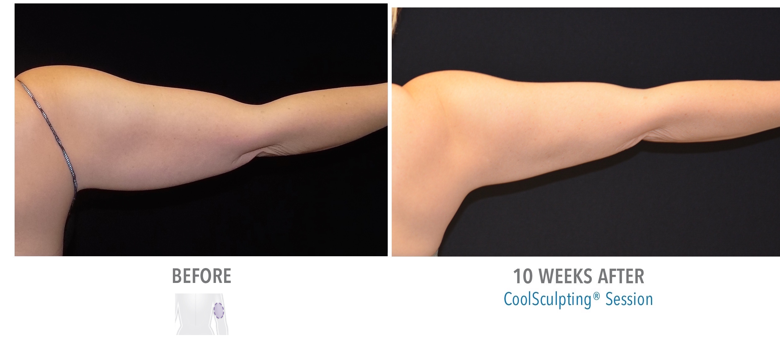 Upper Arms - Female 6 CoolSculpting Orlando