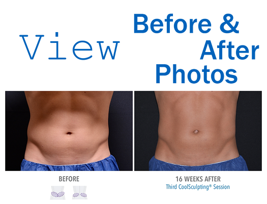 View Before and After CoolSculpting Orlando Photos